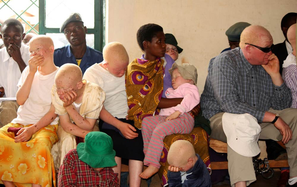 Kazungu Kassim (R), head of a Burundi albino association, listens to proceedings inside a courtroom in Ruyigi, eastern Burundi on May 28 2009. Prosecutors in Burundi asked for life sentences for three people on trial for allegedly murdering albinos to sell their body parts for use in witchcraft. (Pic: Reuters)