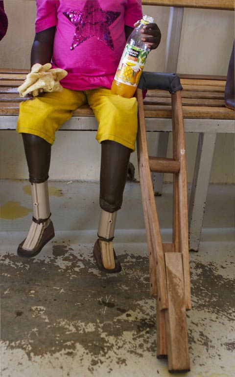 A picture taken on April 24 2015 shows lower-limb prostheses of a disabled child at the Comprehensive Rehabilitation Services Uganda. (Pic: AFP)